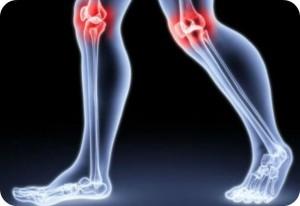 Dolegliwość reumatyczna- objawy oraz kuracja